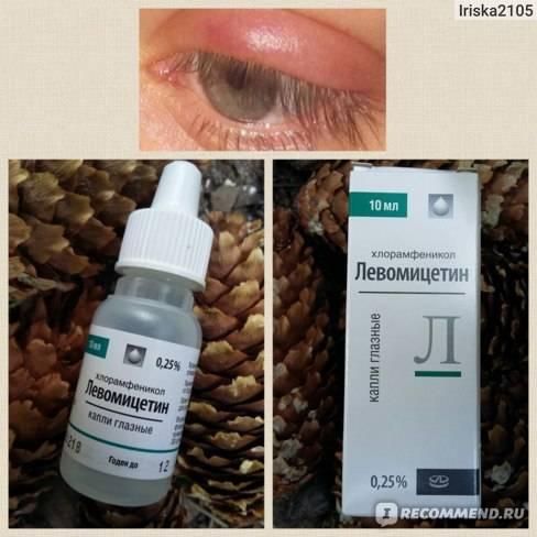Капли от ячменя на глазу у детей: эффективные препараты