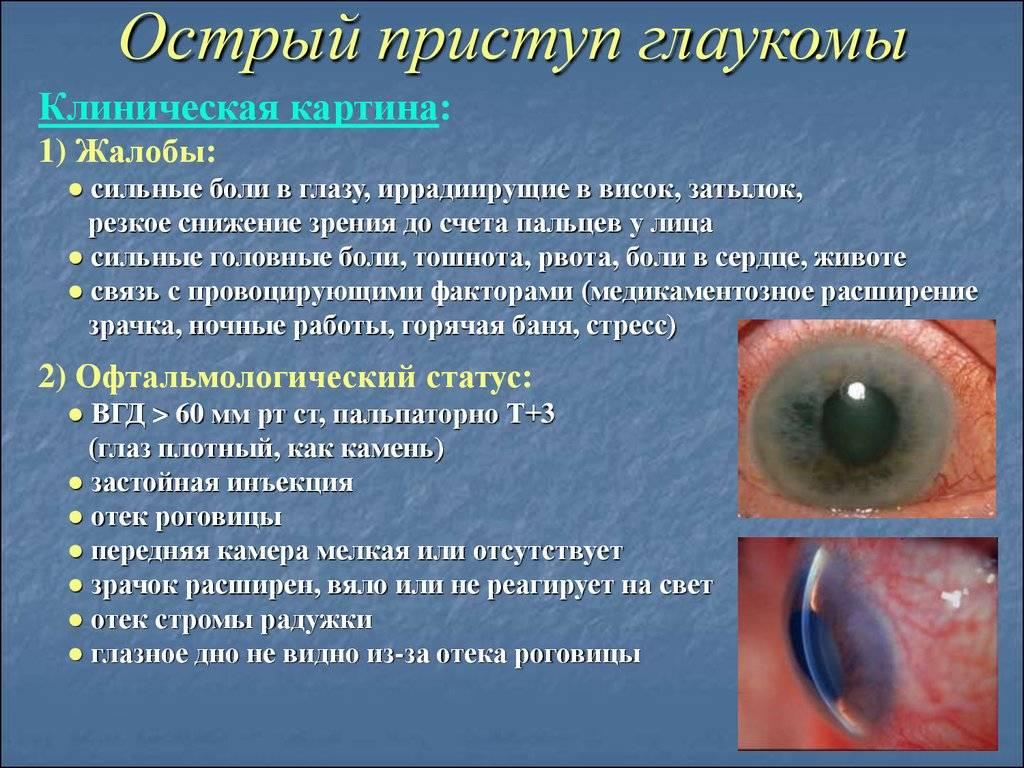 Экзофтальм - что это такое? смещение глазного яблока вперед (выпученные глаза): причины и лечение