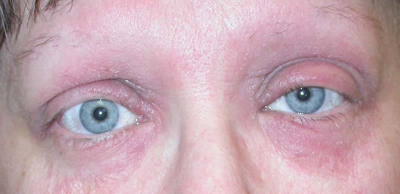 Почему сохнут, краснеют и трескаются уголки глаз