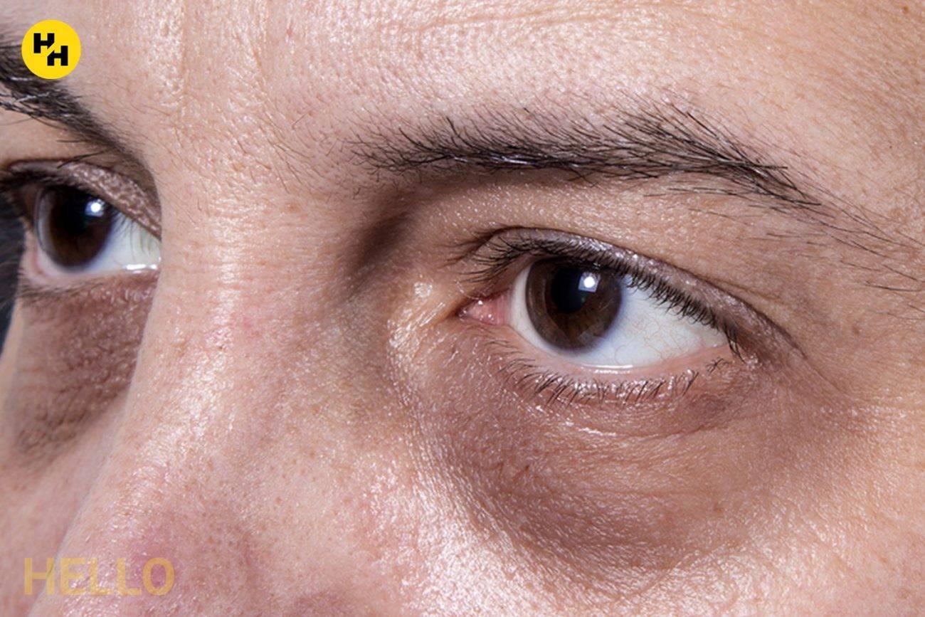 Круги (мешки) под глазами — почему появляются, и как избавиться? | здорова и красива
