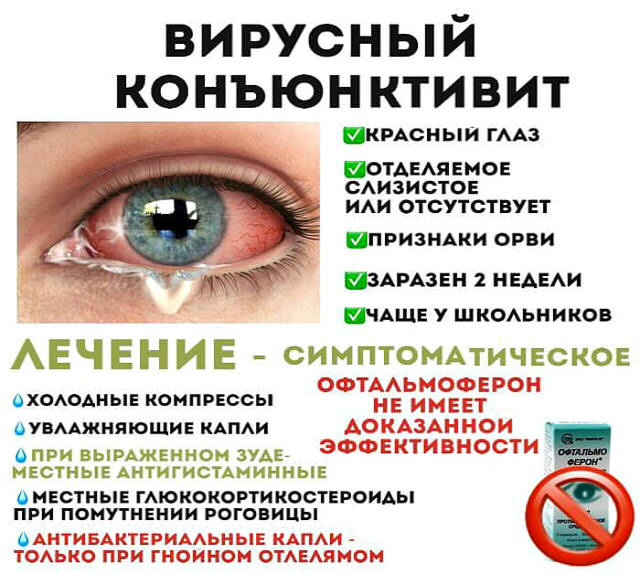 Профилактика конъюнктивита у детей: в детском саду, при контакте с больными, защита от повторногог заражения