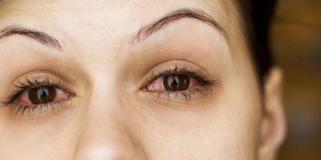 Почему слезятся глаза после косметики