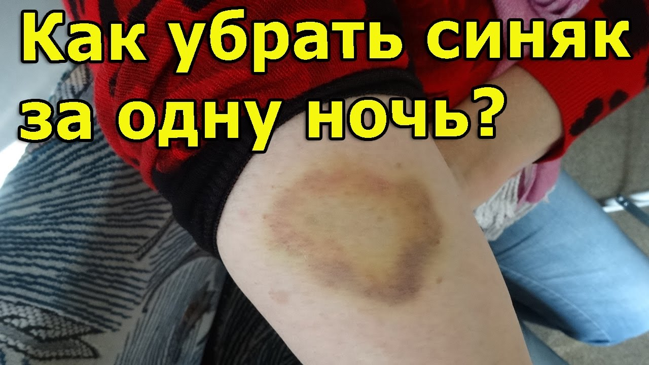 Как убрать синяк от удара под глазом: обзор лекарственных препаратов и народные средства - sammedic.ru