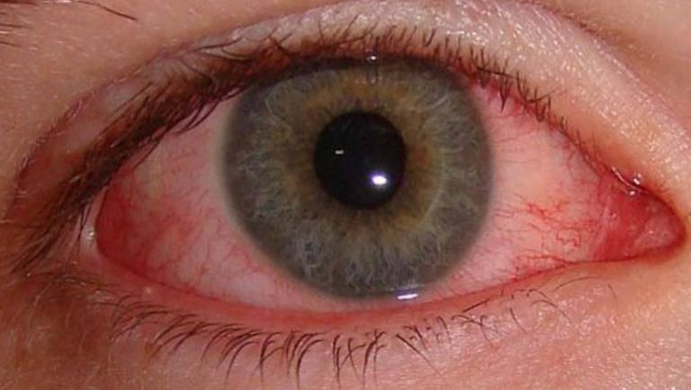 Болят глаза от сварки: что делать, чем снять боль в домашних условиях, народными средствами