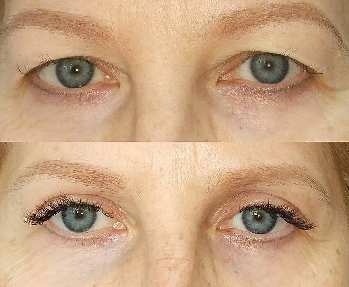 Реабилитация после блефаропластики: фото после операции по дням, в случае неудачной подтяжки нижних и верхних век, возможные осложнения (разные глаза, мешки, отеки и другие)