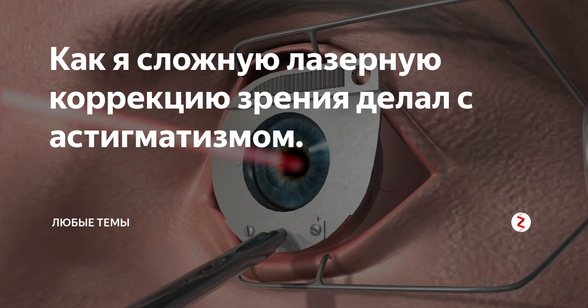 Коррекция зрения по омс: кто может воспользоваться лечением, необходимые документы