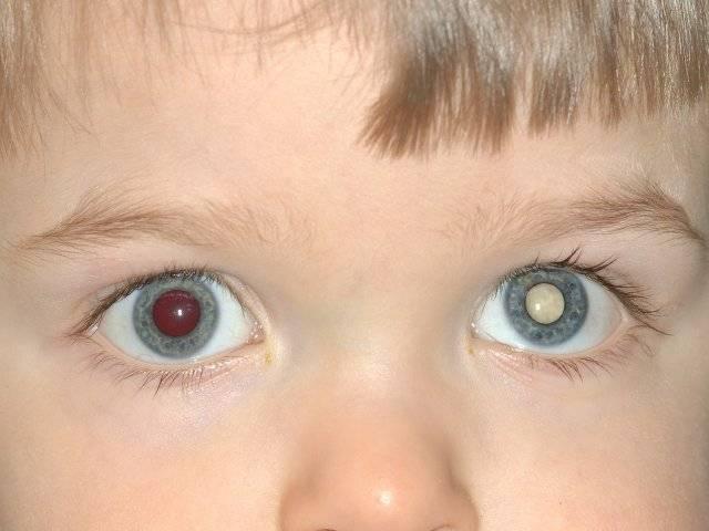 Рак глаза: первые симптомы у детей и взрослых