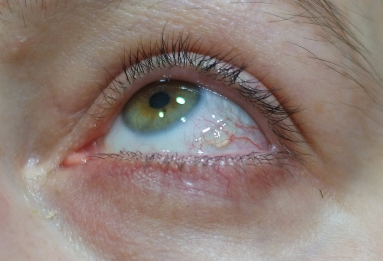 Пятна на глазном яблоке (родимые, серые, коричневые, темные, черные точки), на белке, сетчатке, зрачке: причины, фото, симптомы, лечение