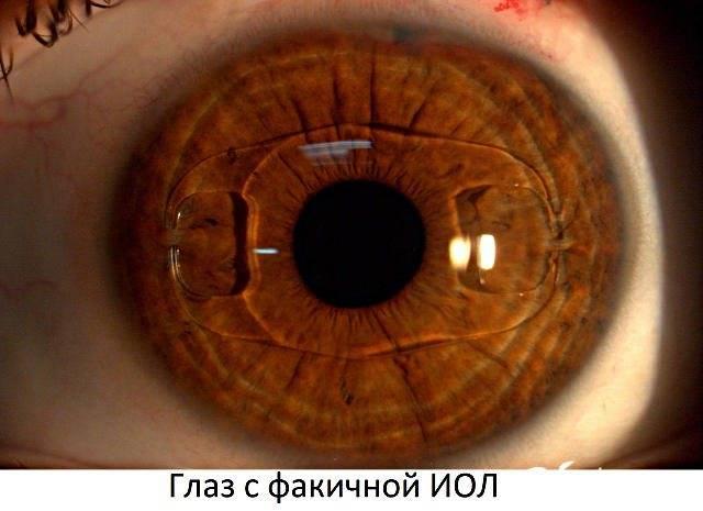 Немецкие искусственные хрусталики для глаз (иол, интраокулярные линзы) - описание, отзывы и преимущества