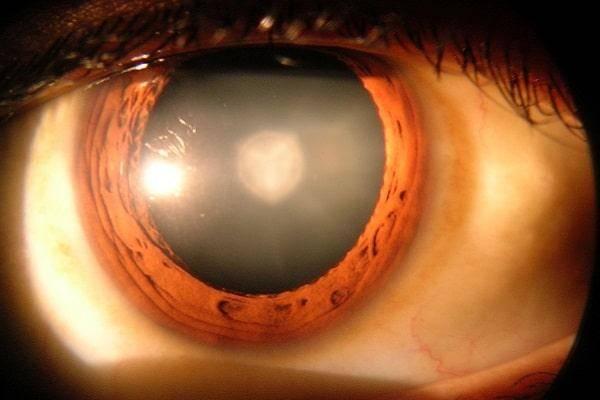 Замена хрусталика при катаракте