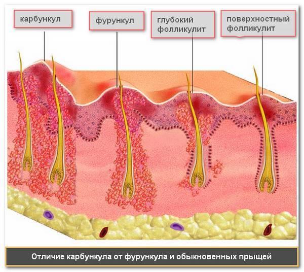16 мазей от фурункулов, вытягивающих гной на начальной и поздней стадии чирия
