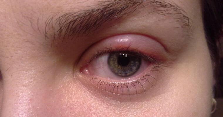 Продуло глаз опухло веко. что делать, если простудил глаз – симптомы и лечение - про здоровье