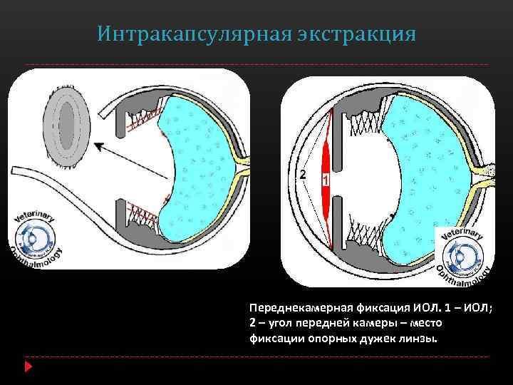 Экстракапсулярная экстракция катаракты без имплантации иол