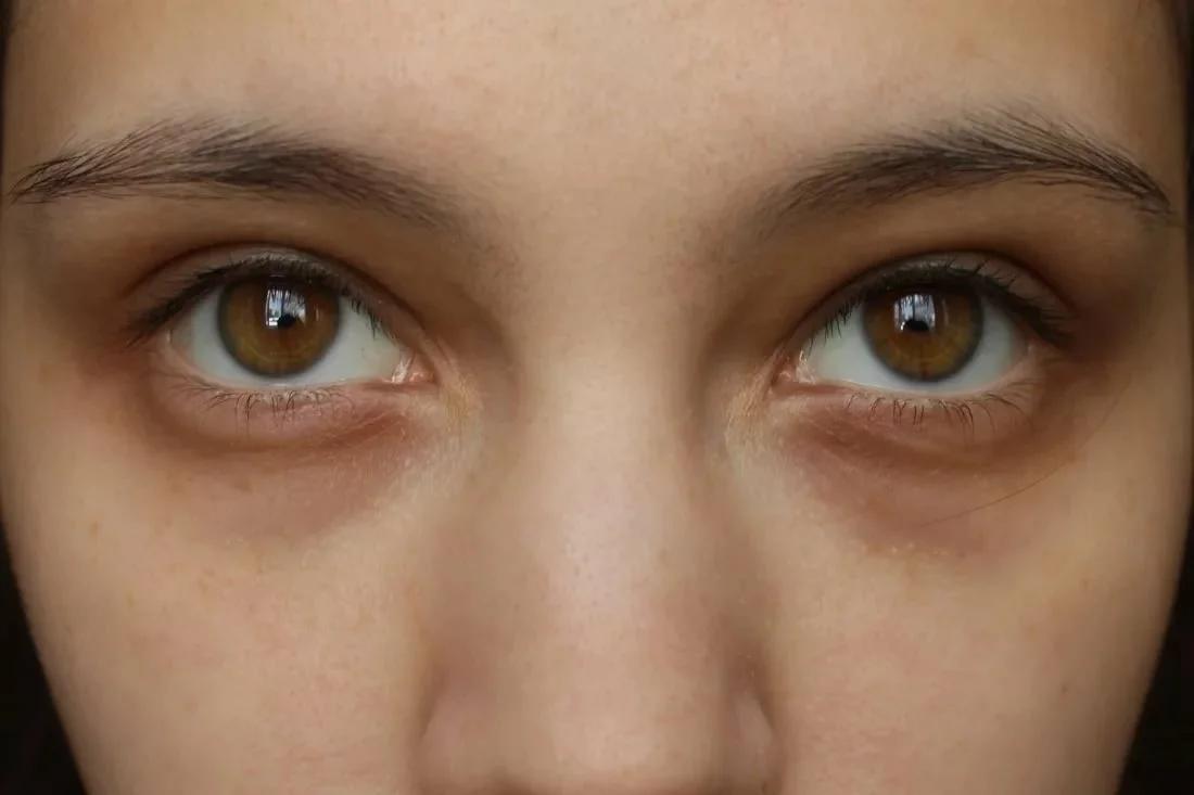 Почему появляются желтые круги под глазами у женщин и мужчин: причины, методы лечения