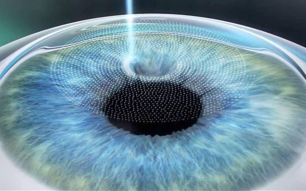 Метод коррекции зрения супер фемто ласик - показания, достоинства и недостатки операции
