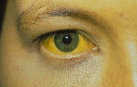 Желтые круги под глазами. отчего появляется жёлтая кожа вокруг глаз
