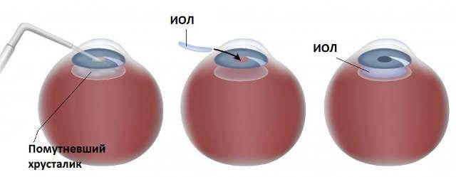 Имплантация факичных интраокулярных линз для лечения астигматизма