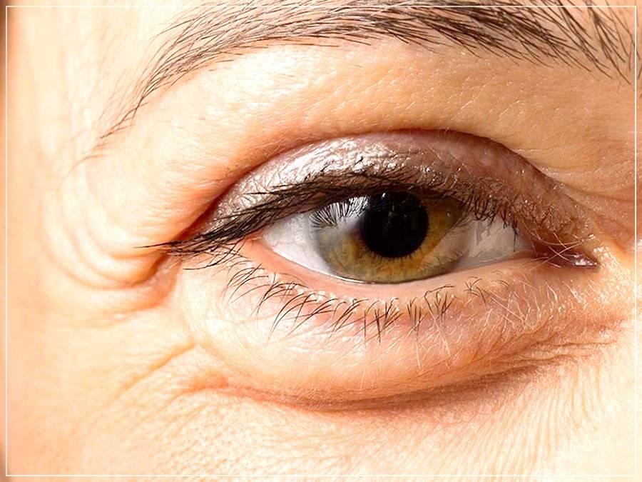 Покраснение и шелушение под глазом