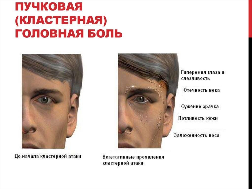 """Боль в уголках глаз: причины и лечение - """"здоровое око"""""""
