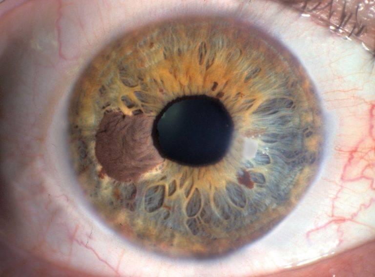 Иридодиагностика. как определить болезни по радужке глаз