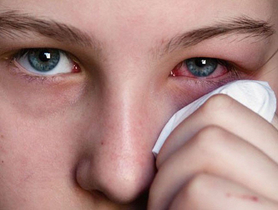 При простуде болит и гноится глаз