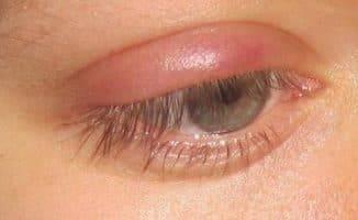 У меня ячмень на глазу, как лечить быстро дома?