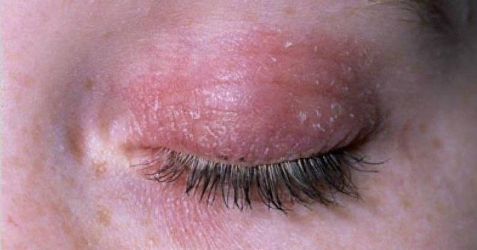 Дерматит век: лечение, симптомы, причины | все про аллергию