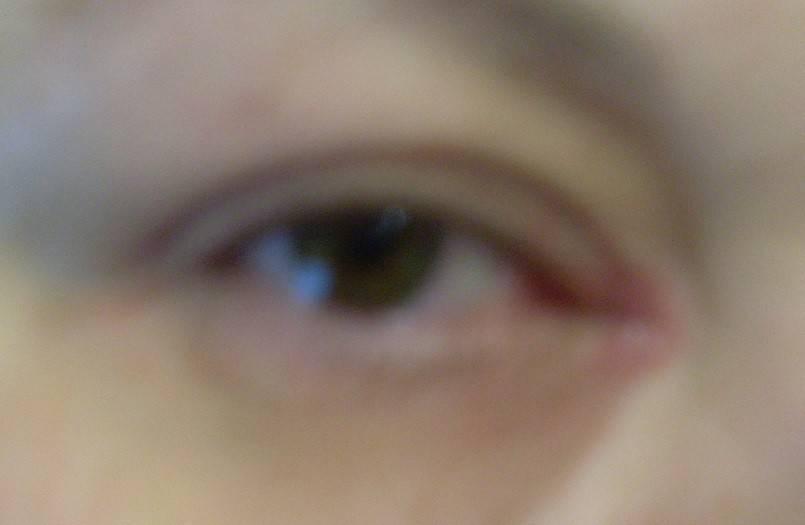 Боль во внешних и внутренних уголках глаз: основные причины