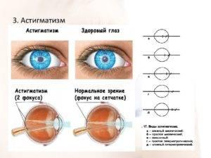 Линзы при астигматизме и близорукости