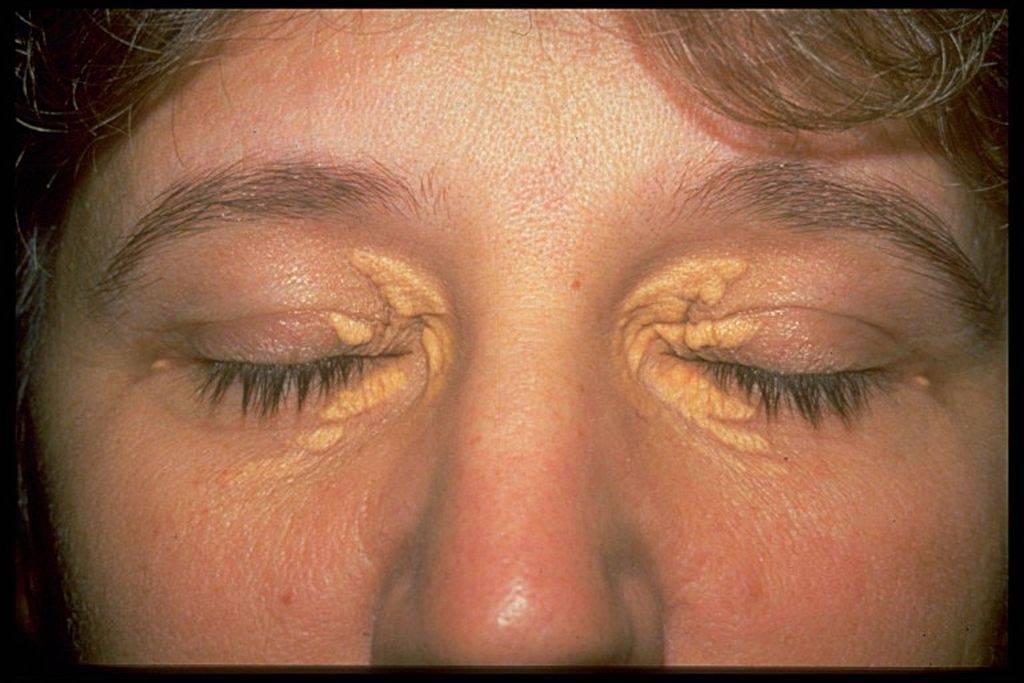 Ксантомы (ксантелазмы) на веках: что это такое, лечение холестериновых бляшек глаз