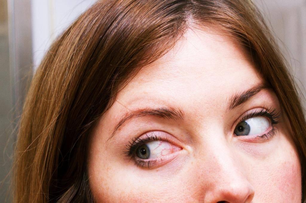 Как избавиться от красных глаз — красивое лицо