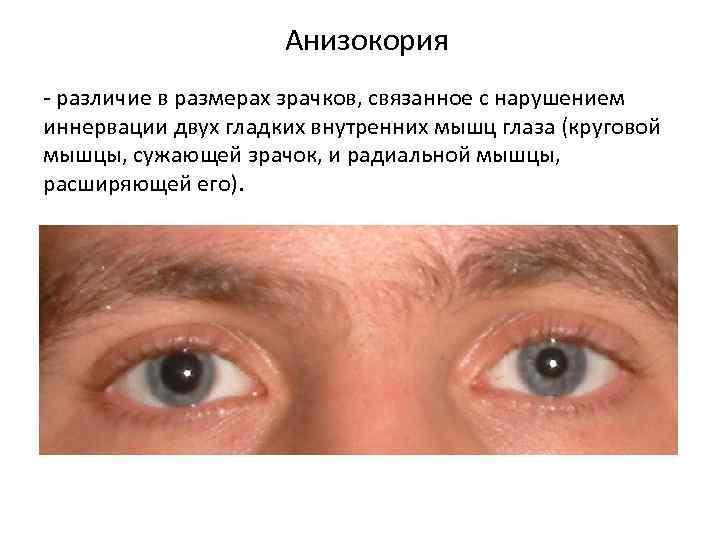 Анизокория – причины и лечение
