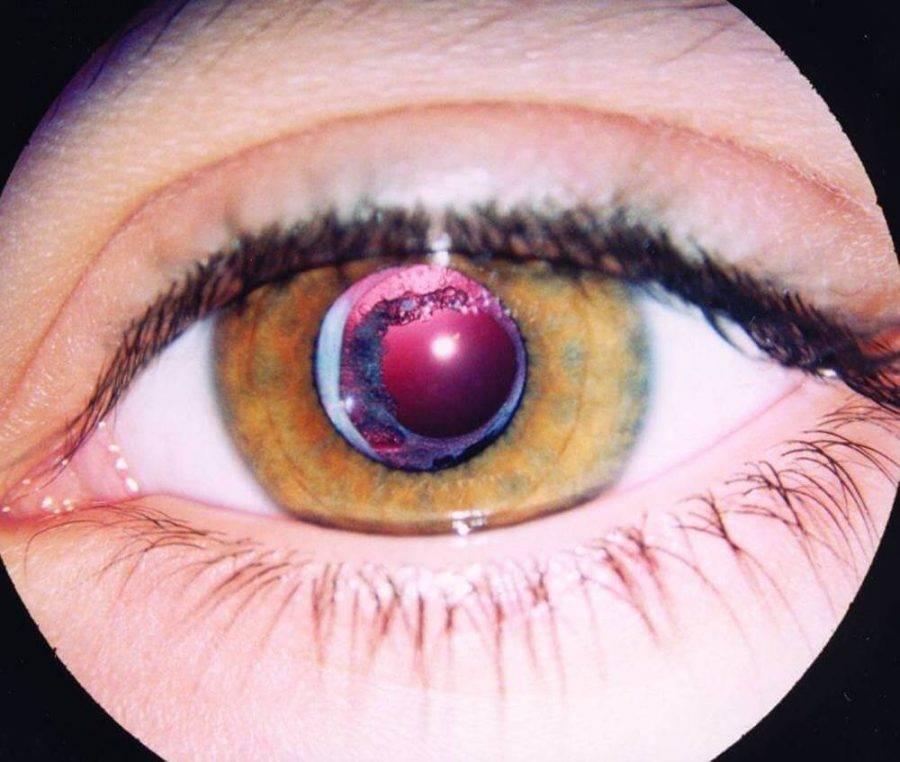 Кератоконус: жесткие контактные линзы и склеральные, ношение очков при болезни
