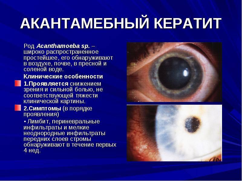 Нитчатый кератит: причины, симптомы, лечение, методы профилактики