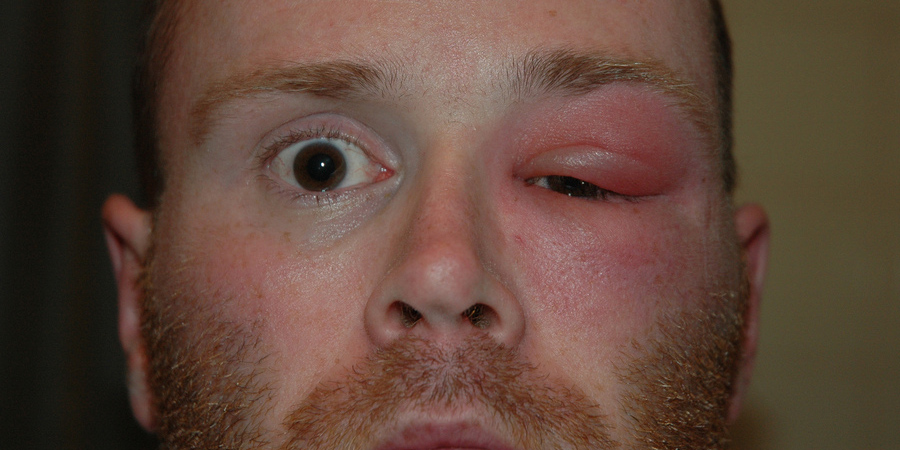 Выпал глаз у человека