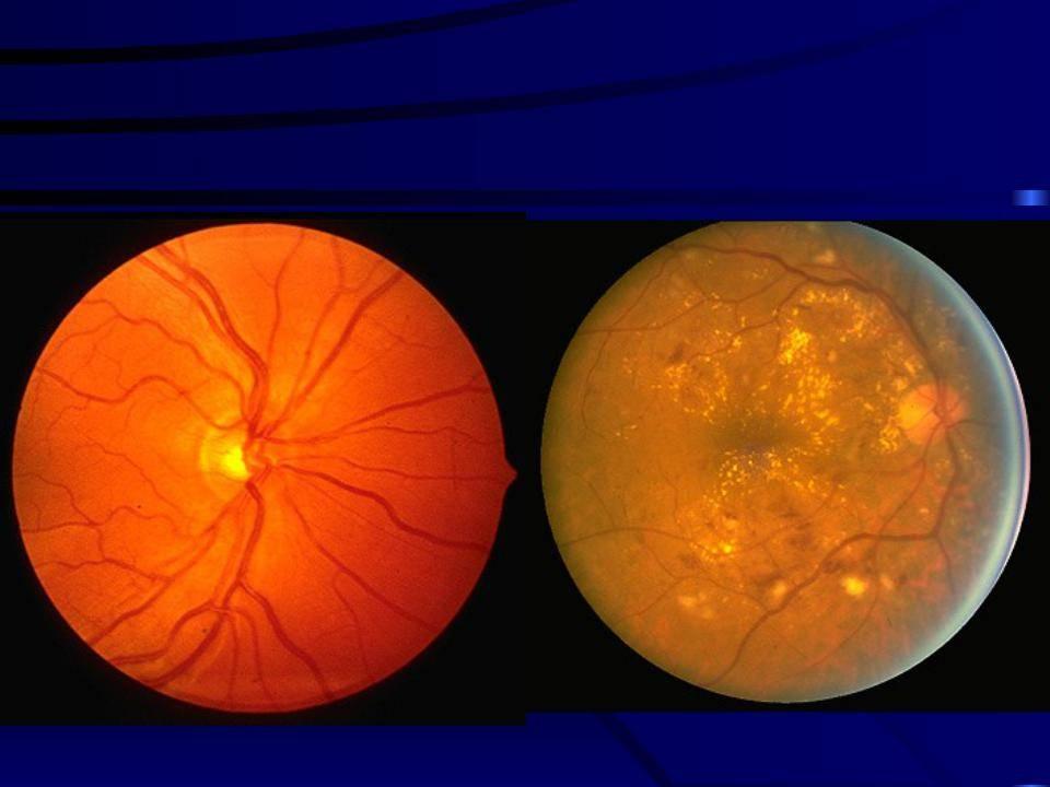 Лечение ретинопатии: что это такое, как лечить глаза, успешно ли лечится при помощи операции