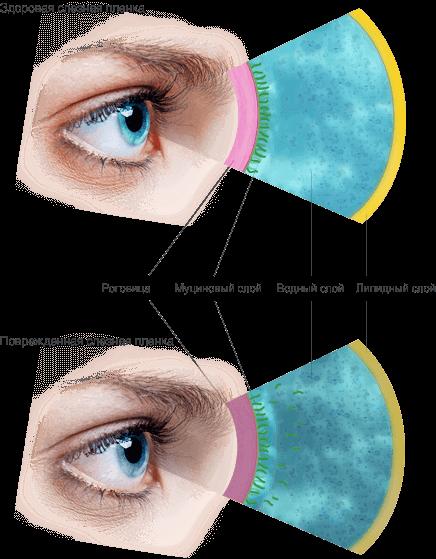 Синдром сухого глаза: причины, симптомы и лечение заболевания