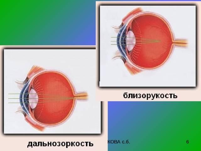 Что такое близорукость и дальнозоркость. может ли одновременно возникнуть близорукость и дальнозоркость «дальнее зрение» и его свойства