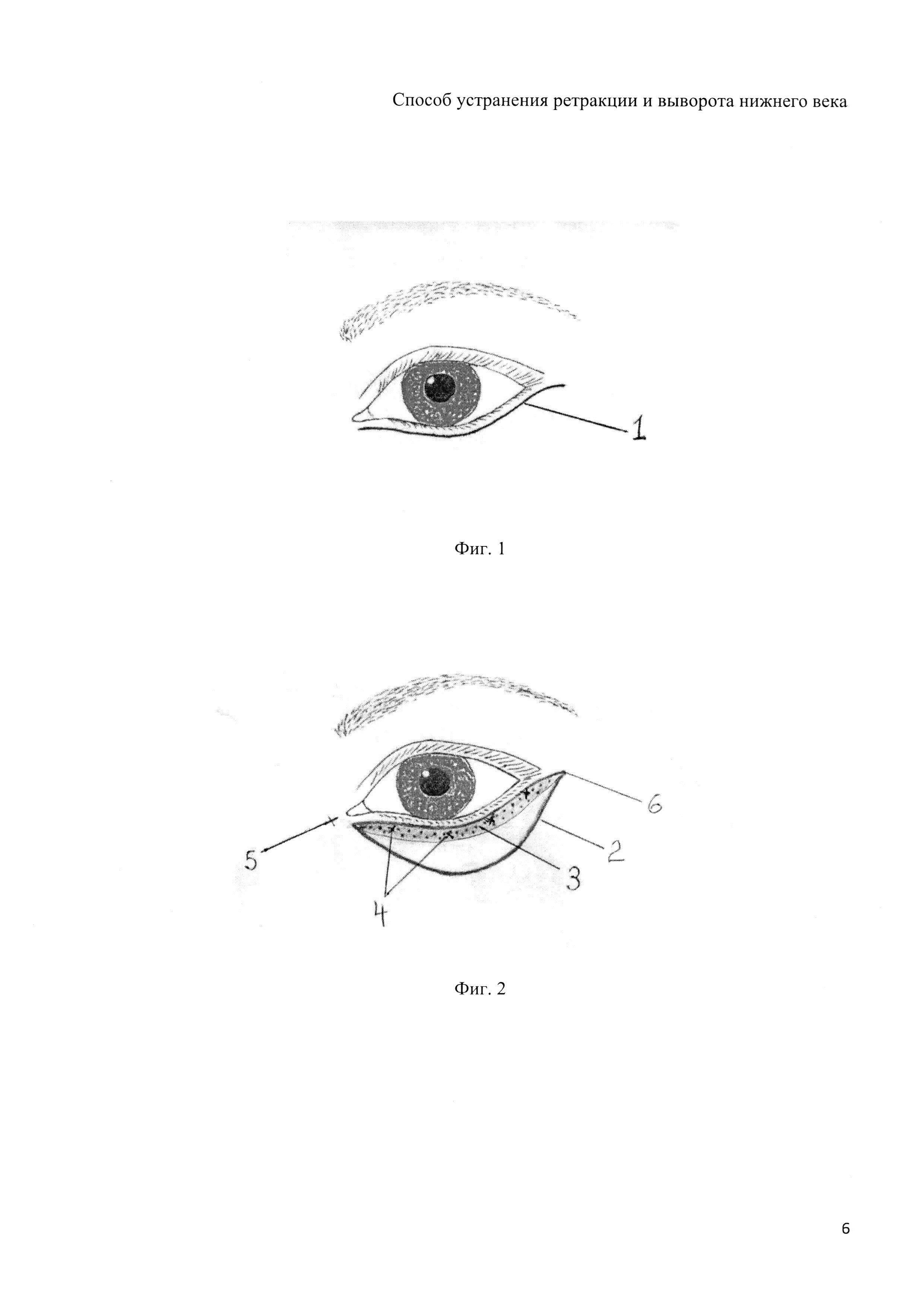 Эндокринная офтальмопатия: фото, диагностика, симптомы, лечение, отзывы