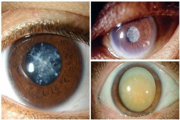 После замены хрусталика глаз видит мутно - причины и что делать - информационный портал диагностики и лечения катаракты глаза