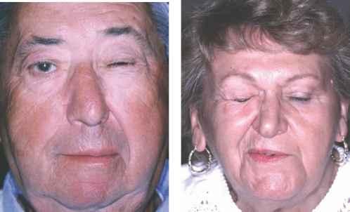 Блефароспазм: причины и симптомы, лечение спазмов глаза