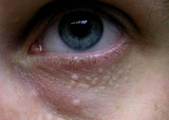На веках глаз белые жировики: причины появления и эффективные методы лечения - sammedic.ru