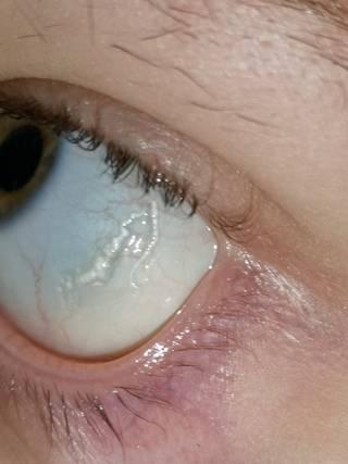 Ощущение в глазу инородного тела: лечение, причины чувства будто что-то попало и мешает, но ничего нет, о какой болезни говорит симптом наличия постороннего предмета