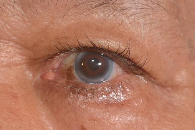 Мутные глаза у человека: причины при какой инфекции может развиться поражение роговицы
