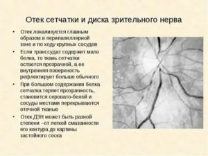 Заболевания зрительного нерва.