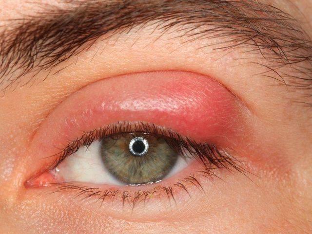 Глаз продуло болит слезится