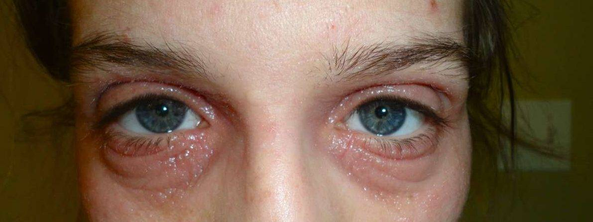 Причины появления шишки на веке глаза