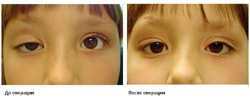 Хирургическое лечение косоглазия у детей и взрослых: виды операций, отзывы, клиники, цены