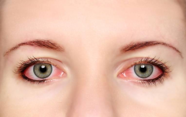 Почему от линз краснеют глаза