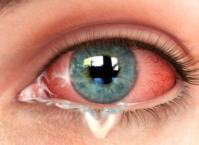 Выделения из глаз (белые, гнойные, нитевидные) скапливаются в уголках по утрам, у взрослого человека – причины